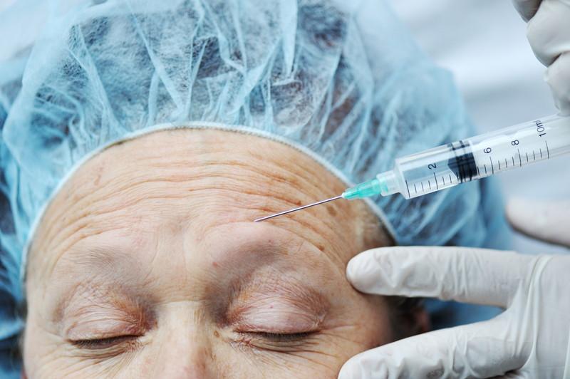 美容皮膚科の施術
